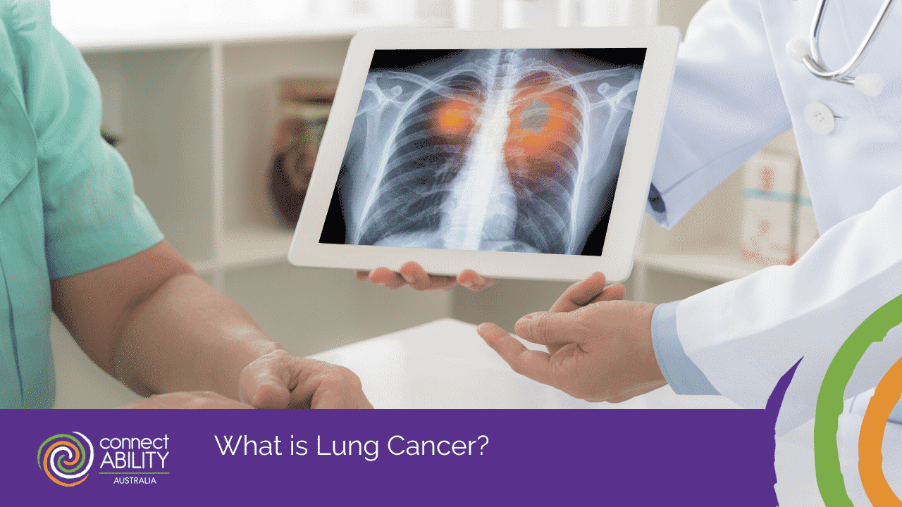 Lung Cancer Awareness Month | Lung Cancer
